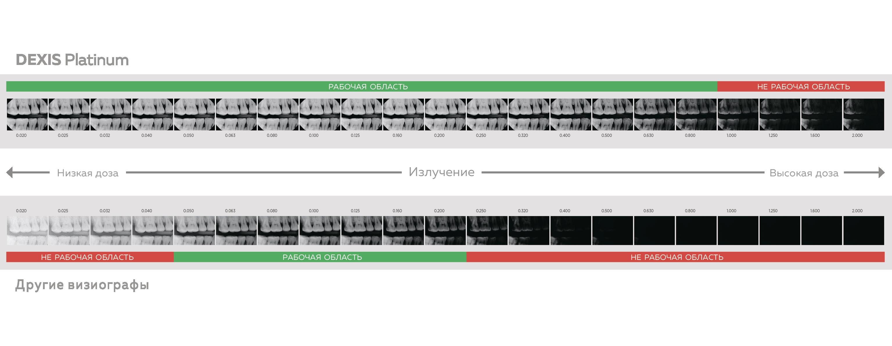 DEXIS Platinum - цифровой радиовизиограф премиум класса